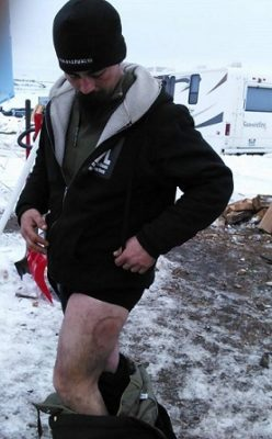 Water Protector at DAPL shows rubber jacket bullet wound. Photo Credit: Joseph Hock